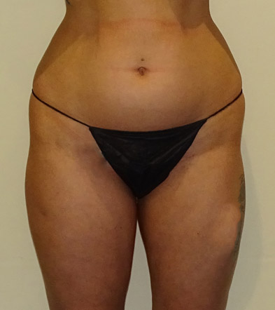 Brazilian Bum Lift surgery UK before photo 14