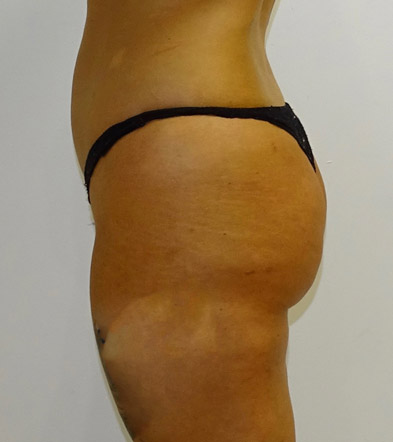 Brazilian Bum Lift surgery UK after photo 15
