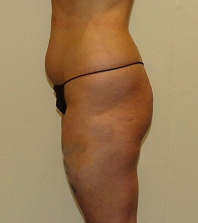 Brazilian Bum Lift surgery UK before photo 15