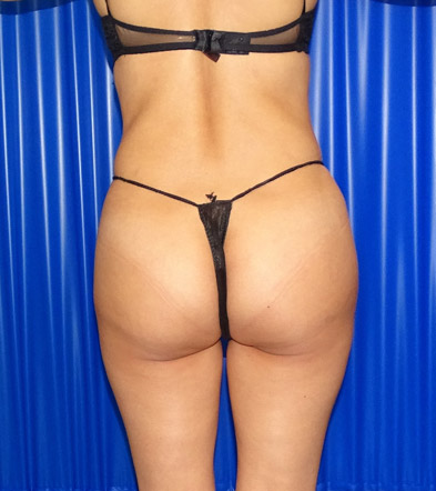 Brazilian Bum Lift after example 2