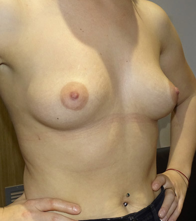 Boob Implant 1 Before