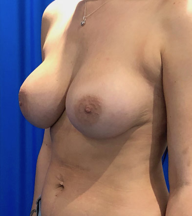 Boob Implant 5 After