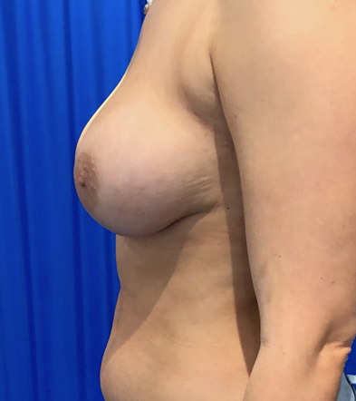 Boob Implant 6 After