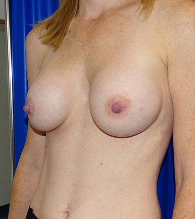 Boob Implant 7 After