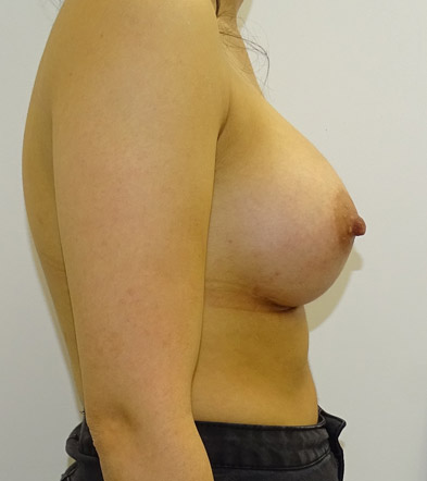 Boob Implant 9 After