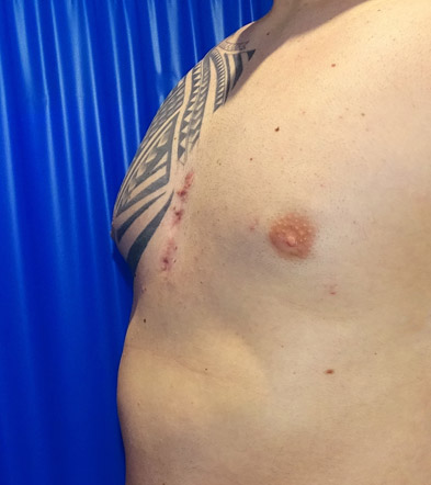 Pectoral Implant Example 3 After