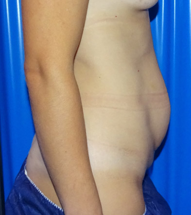 Tummy Tuck London Example 2 Before