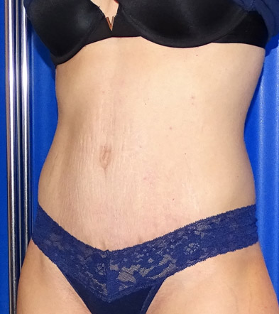 Tummy Tuck London Example 4 After