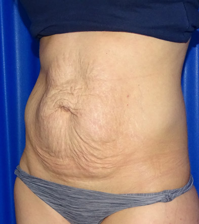 Tummy Tuck London Example 4 Before