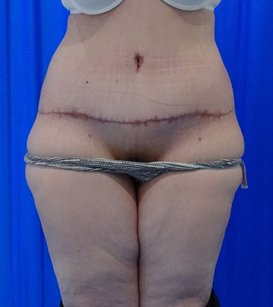 Tummy Tuck London Example 5 After