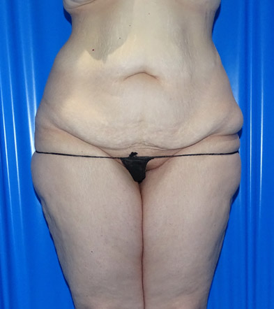 Tummy Tuck London Example 5 Before