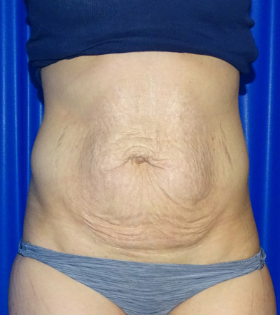 Tummy Tuck UK Example 1 Before