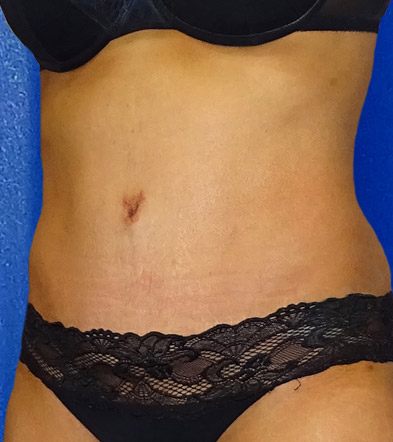 Tummy Tuck UK Example 3 After