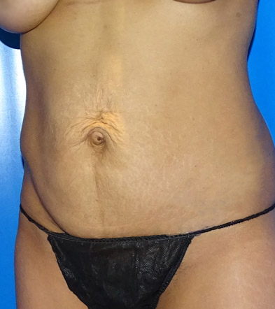 Tummy Tuck UK Example 3 Before