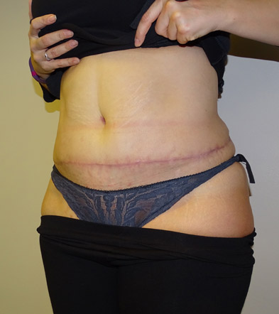 Tummy Tuck UK Example 5 After