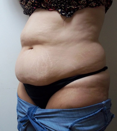 Tummy Tuck UK Example 5 Before