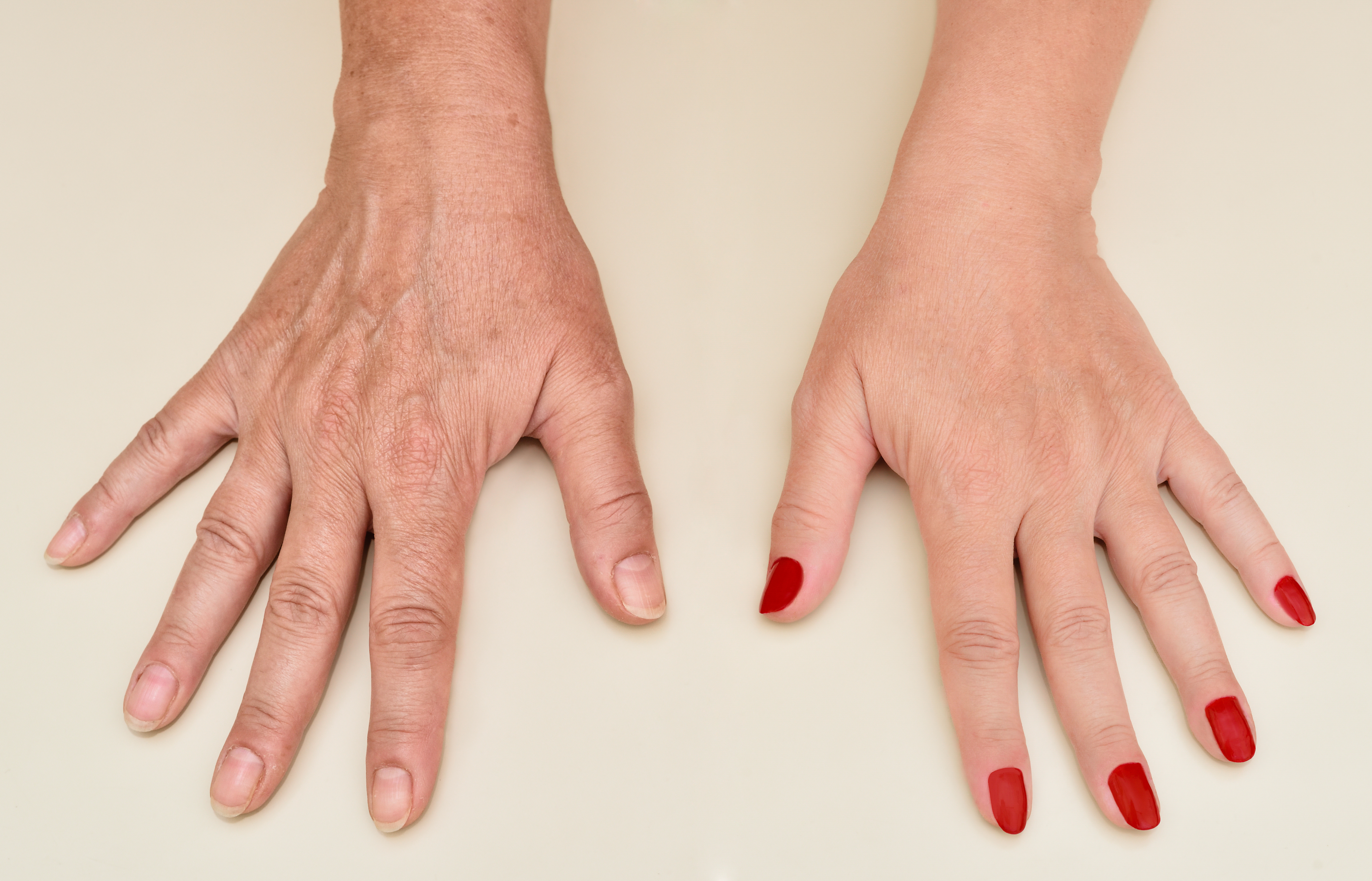 Hand Rejuvenation. Why and how