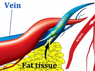 What is Fat Embolism?